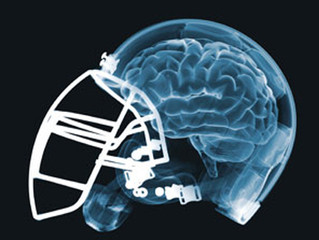 California: Concussions are Up and Football Participation is Down