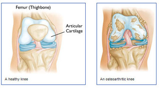 MRI-Detected Damage Shows Up 2 years Before Knee OA Dx