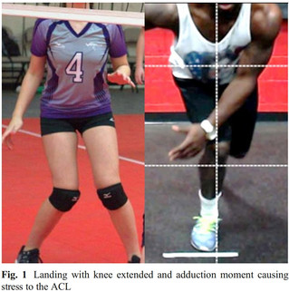 ACL Injury Prevention: What Does Research Tell Us?