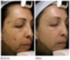 genesis-rejuvenation-at-chic-skin-and-la