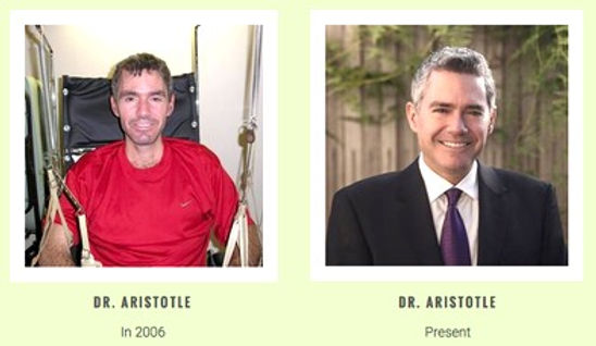 Before after condition of Dr. Aristotle.jpg