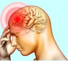 Headache.jpg