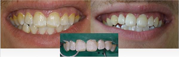 taches jaunes marrons dents