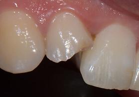 facette dentaire cabinet dentaire d'occ