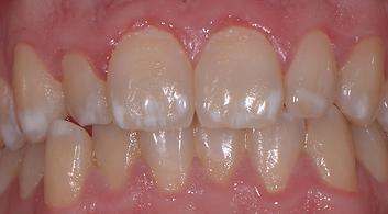 taches blanches cabinet dentaire d'occitanie