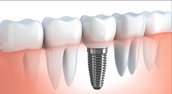 teeth-implant-500x500_edited.png
