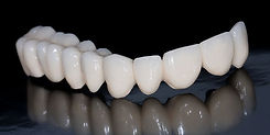 Dental-bridge_1.jpg