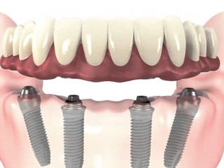 "Dental Implants - ""All-on-4"" or ""All-on-6"""