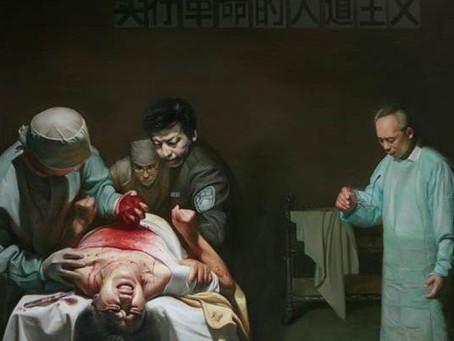 中共活摘人体器官的罪恶