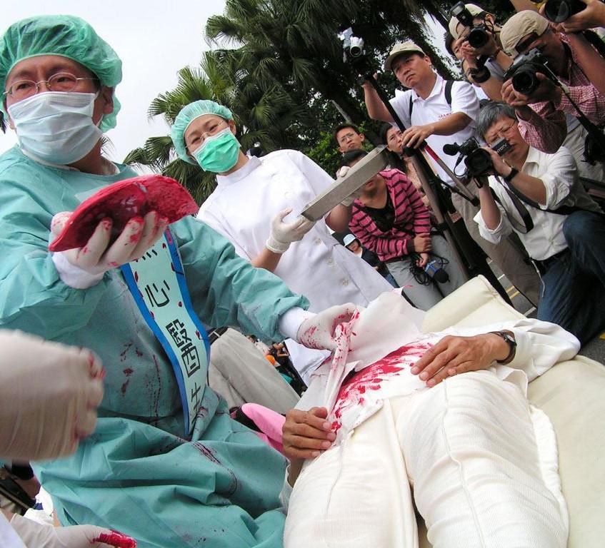 """【明慧网二零一九年四月十一日】(明慧记者王英编译报道)美国亚利桑那大媒体(AZbigmedia)四月十日刊登题为""""中共强摘器官对美国有何影响""""(How forced organ harvesting in China affects the U.S.)的文章。文章说,中共强摘器官的行径已经影响到美国的医疗界和患者。如果不了解中共强摘器官的真相,在不知情的情况下,就面临成为强摘器官共谋的风险。"""
