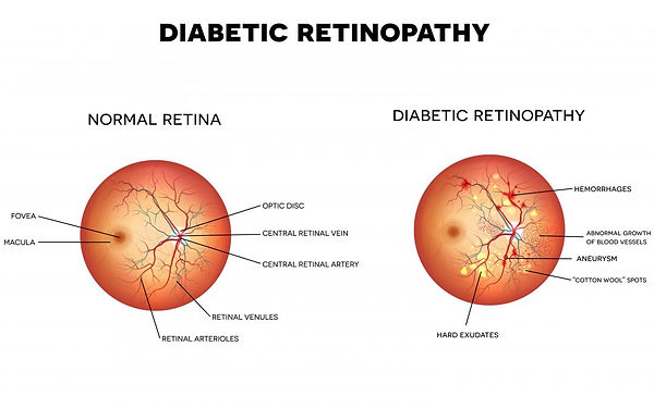 Diabetic-Retinopathy_SS-Graphic-1080x675