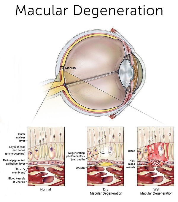 macular_degeneration_larger_for_web.jpg