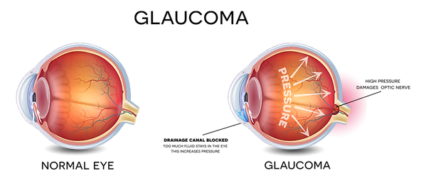 glaucoma image.png