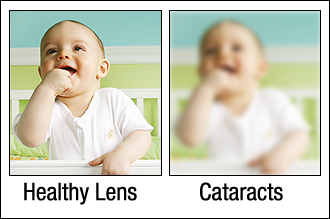 September, Healthy Aging Month: This Week We Are Going to Discuss Cataract Eye Disease!
