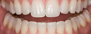 Opalescence Teeth Whitening afterphoto