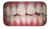 Pola Home Teeth Whitening Before and after