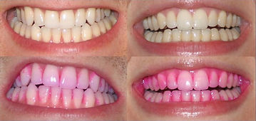 How to use Opalescnce GO Teeth Whitening System