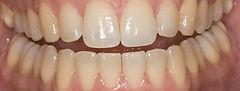 Home teeth whitening before photo