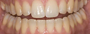Opalescence Teeth Whitening before photo