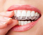 The House of Mouth offers a revolutionary Mobile Custom Fit Teeth Whitening Tray Service. No Dentist required.
