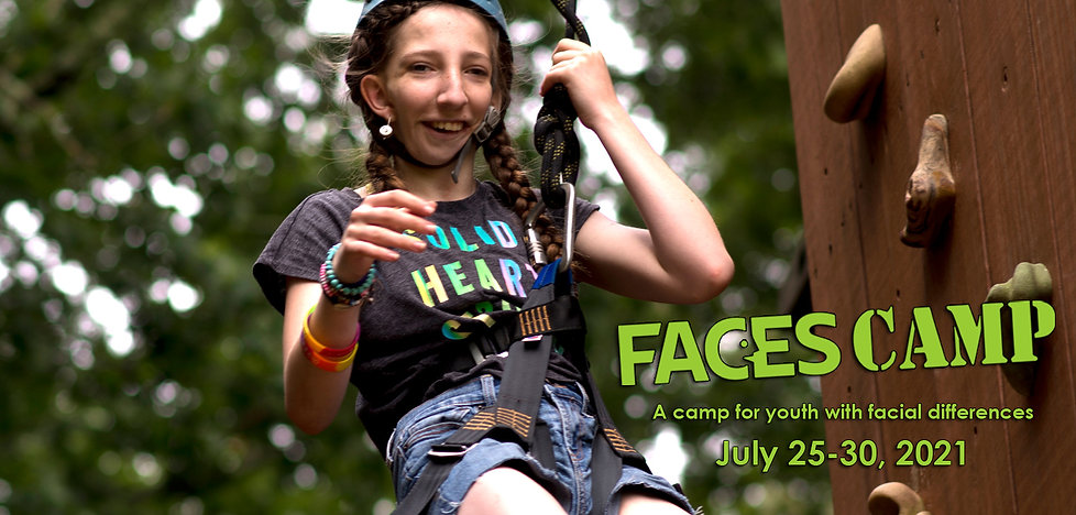 FACEScamp a camp for youth with facial differences