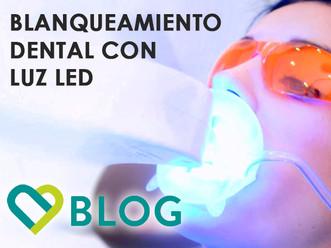 BLANQUEAMIENTO DENTAL LED | ¿Qué es?