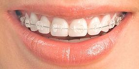 Ceramic-braces-1-1544x772_edited.jpg