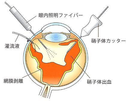 硝子体手術の画像