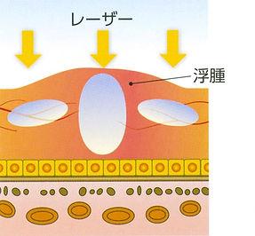 網膜光凝固術イラスト説明画像
