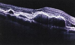 網膜の立体解析 加齢黄斑変性の画像