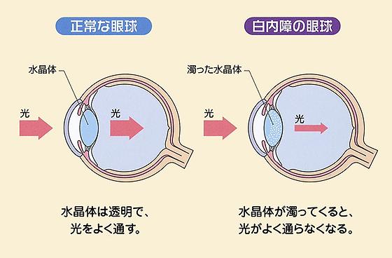 正常な眼球、白内障の眼球