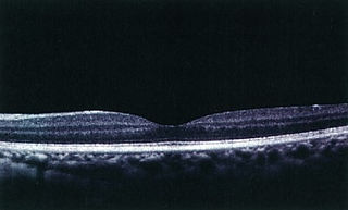 網膜の立体解析 正常な画像