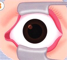 開瞼イラスト画像