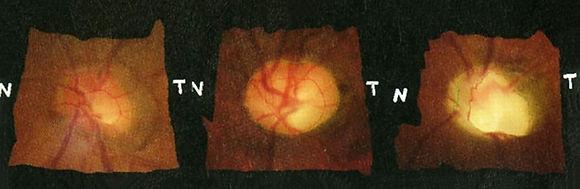 緑内障 初期・中期・後期画像