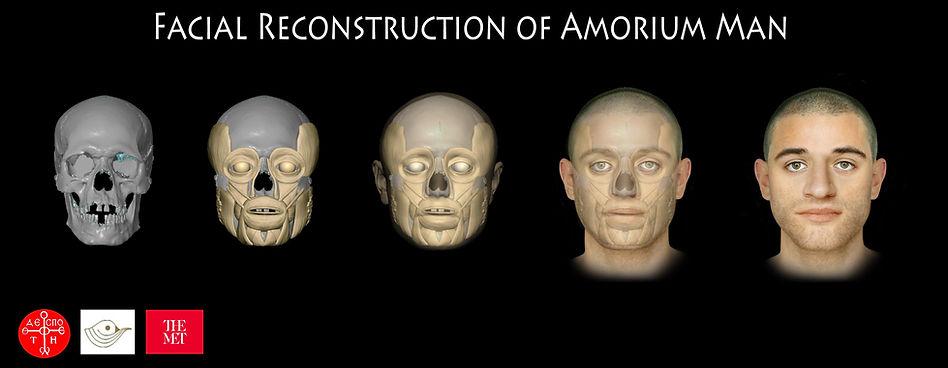 Facial Reconstruction_obulut2.jpg
