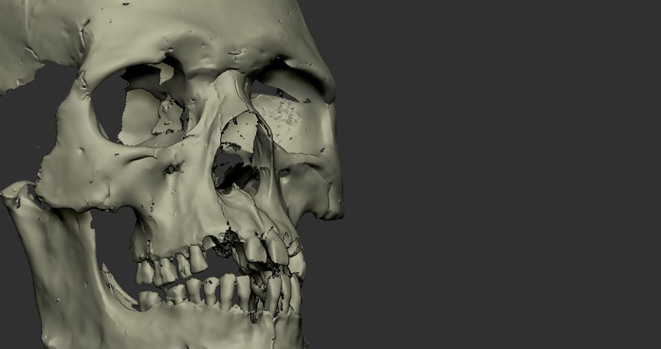 ozgur bulut facial reconstruction_001