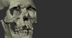 ozgur bulut facial reconstruction_001