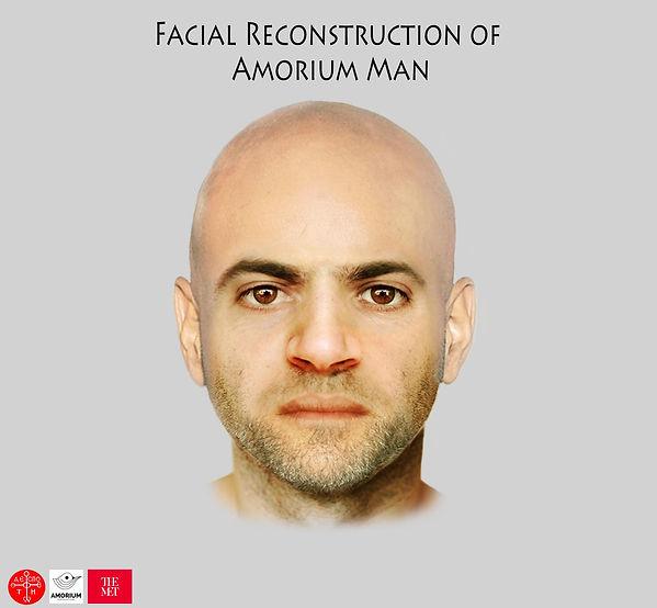 Facial Reconstruction_obulut4.jpg