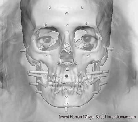facial reconstruction_w01.jpg