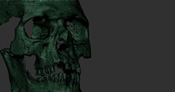ozgur buut_facial reconstruction_002