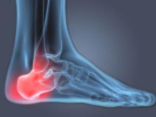 Today's Podiatrist Talks About Heel Pain