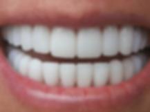 niagara-dentists.png