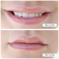 Lip filler by Edinburgh specialists