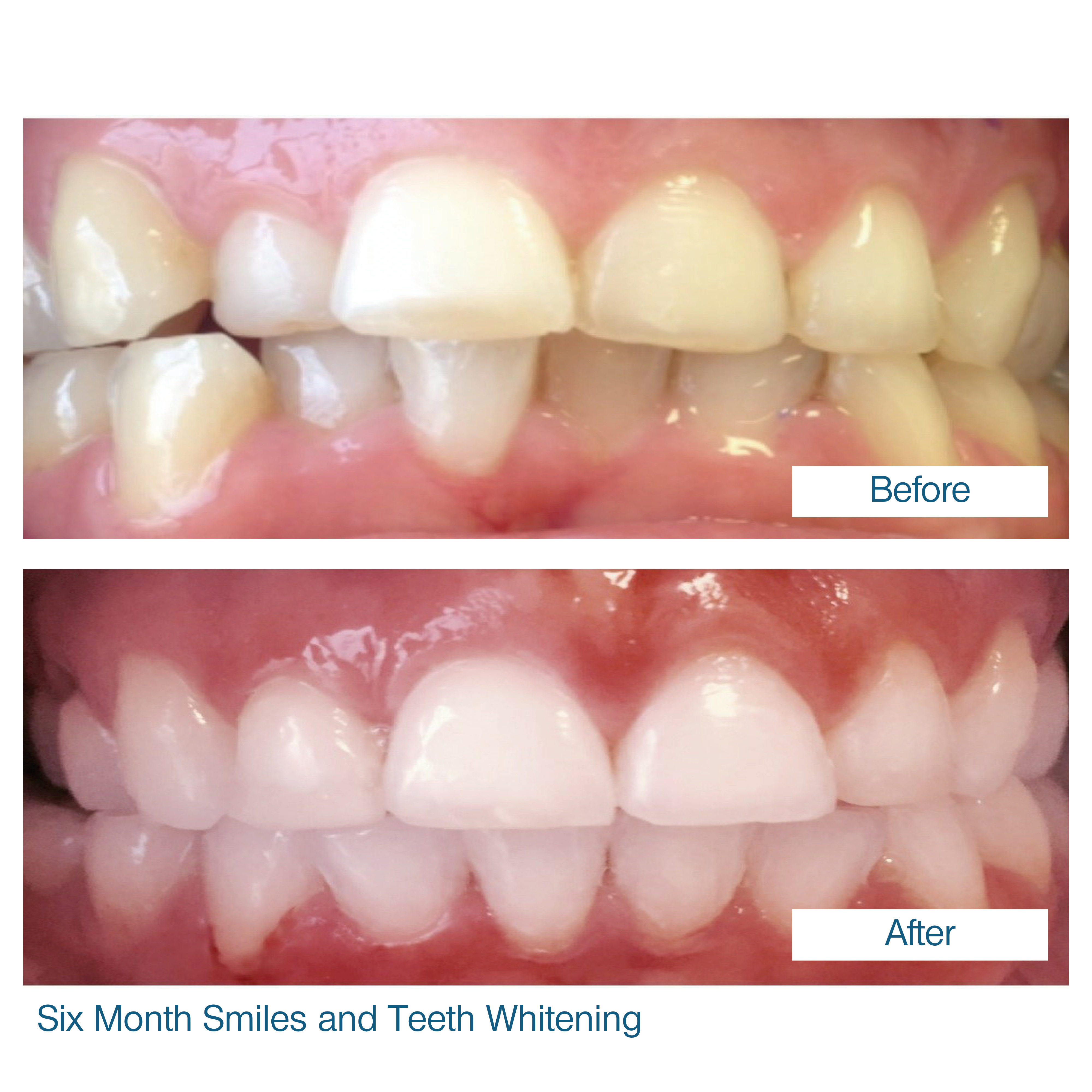 Six month smile by Edinburgh dentist