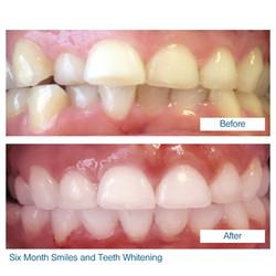 Six month smile by Edinburgh dentist