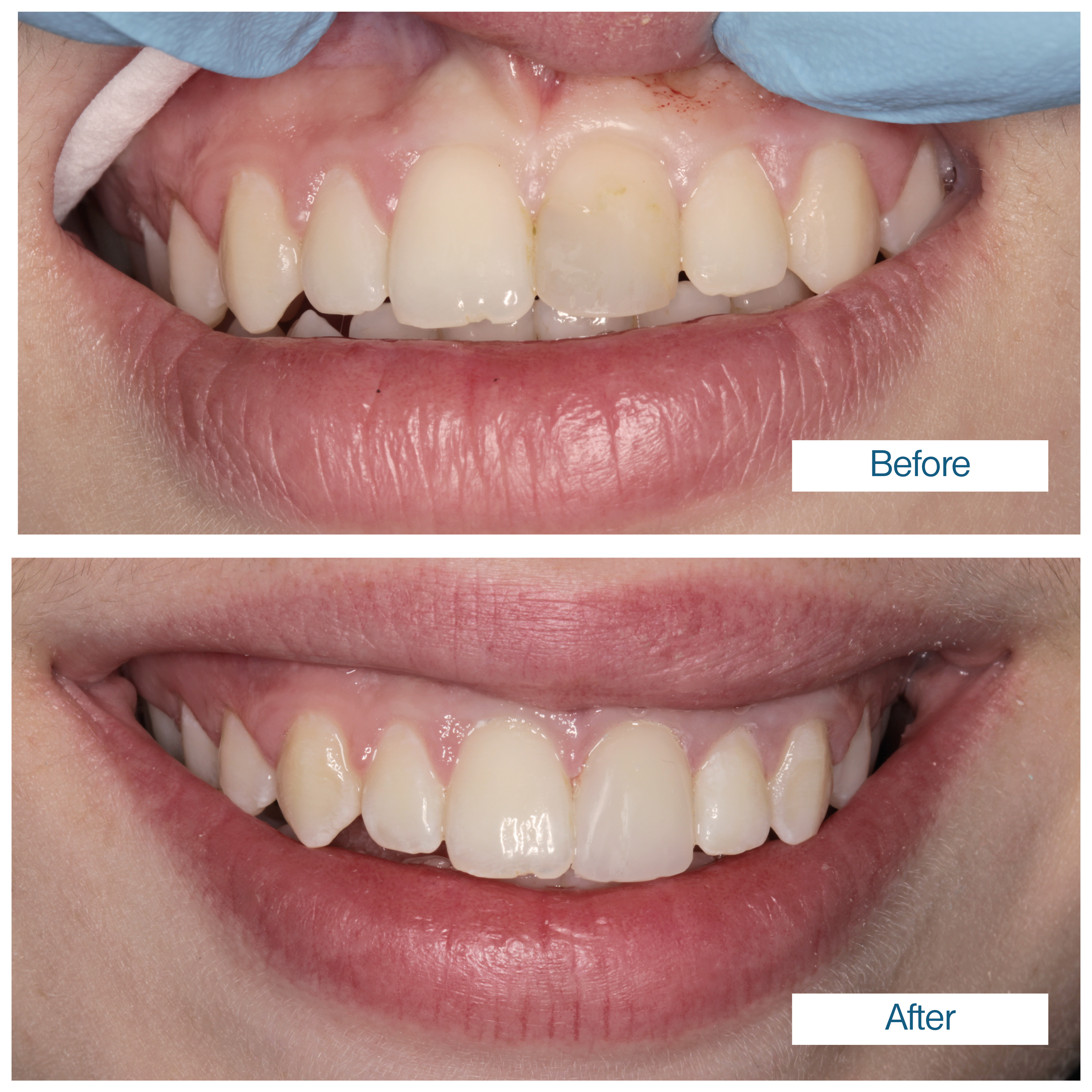 Before & after composite veneer