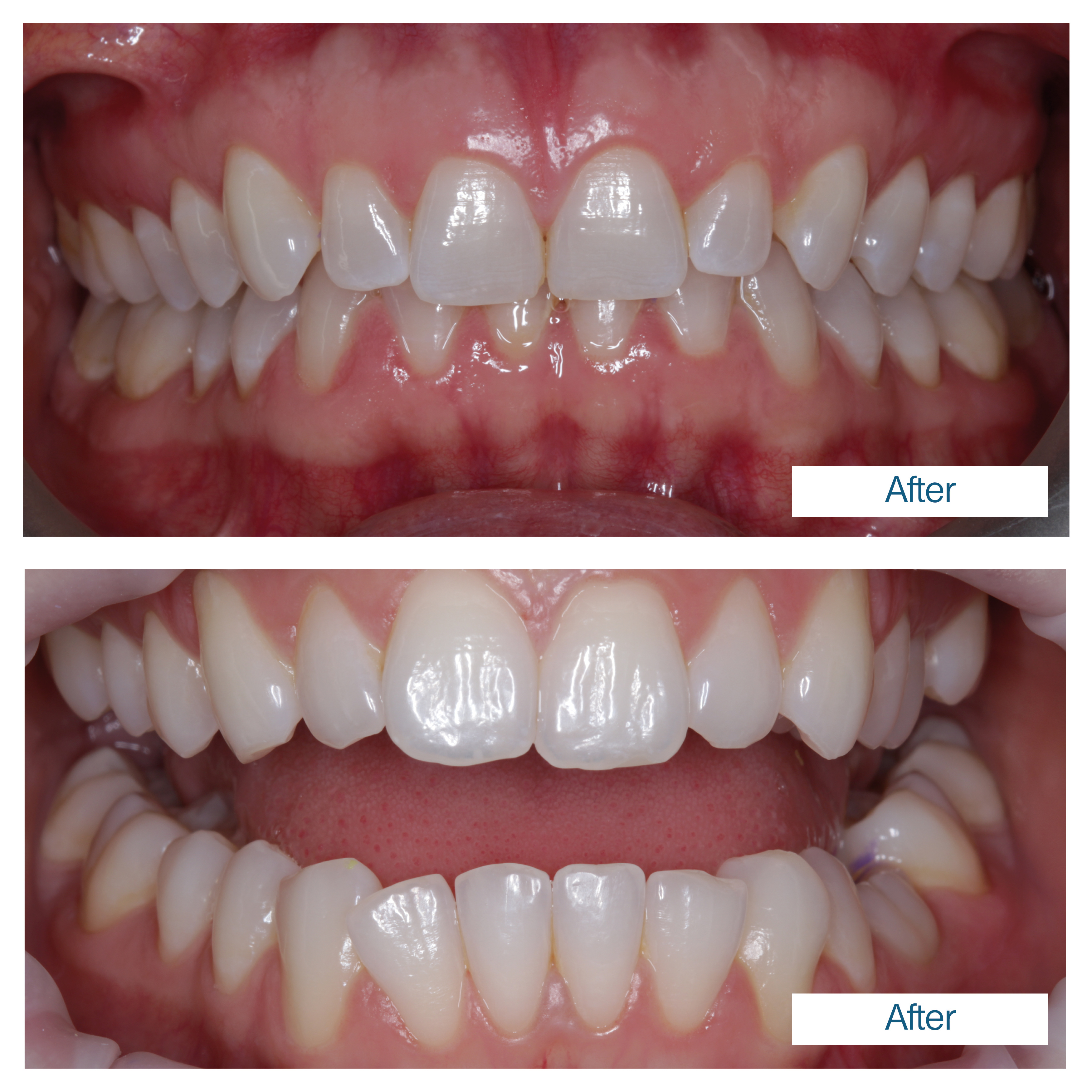 Teeth whitening - 2 patients