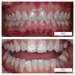 Teeth whitening - 2 patients