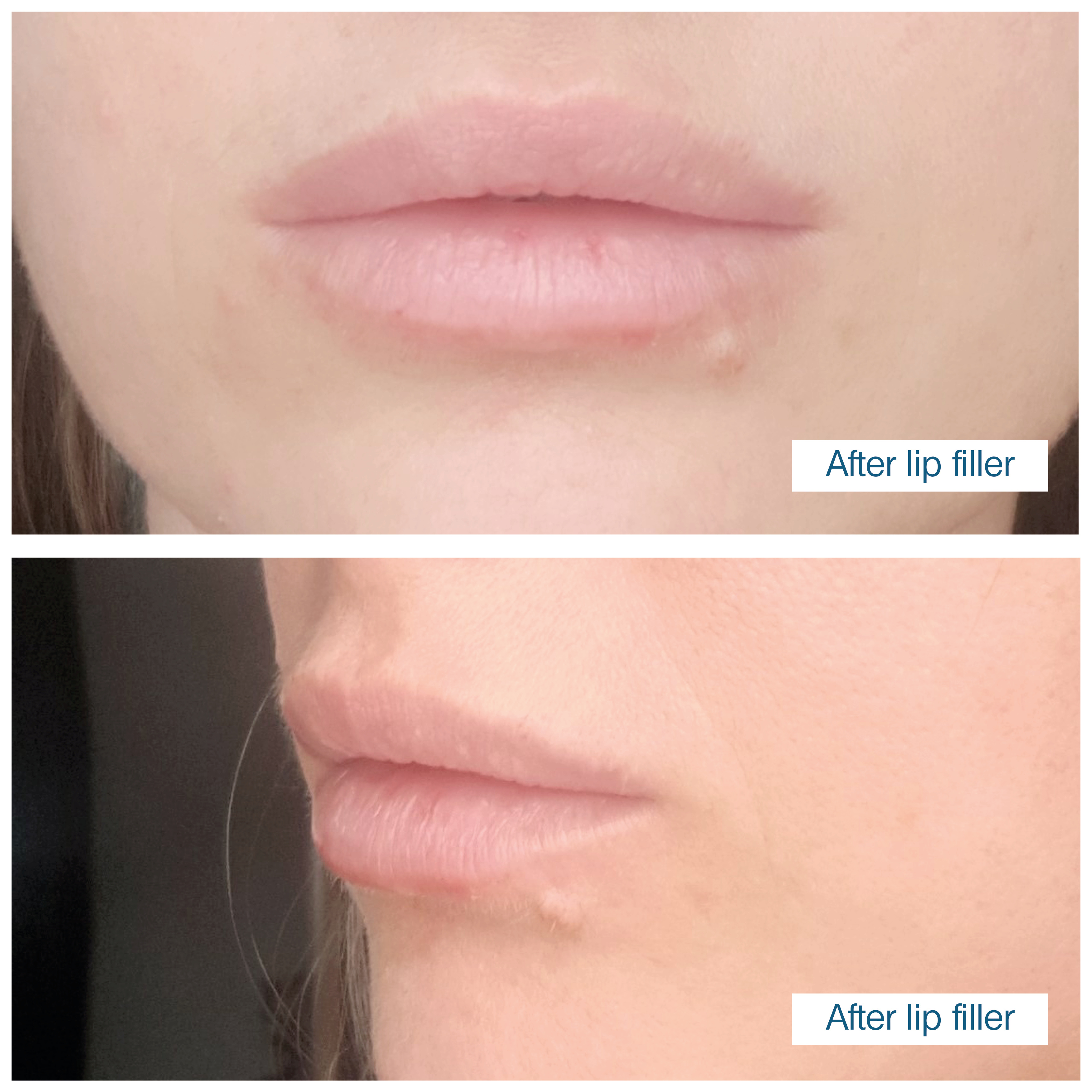 Lip fillers in Edinburgh
