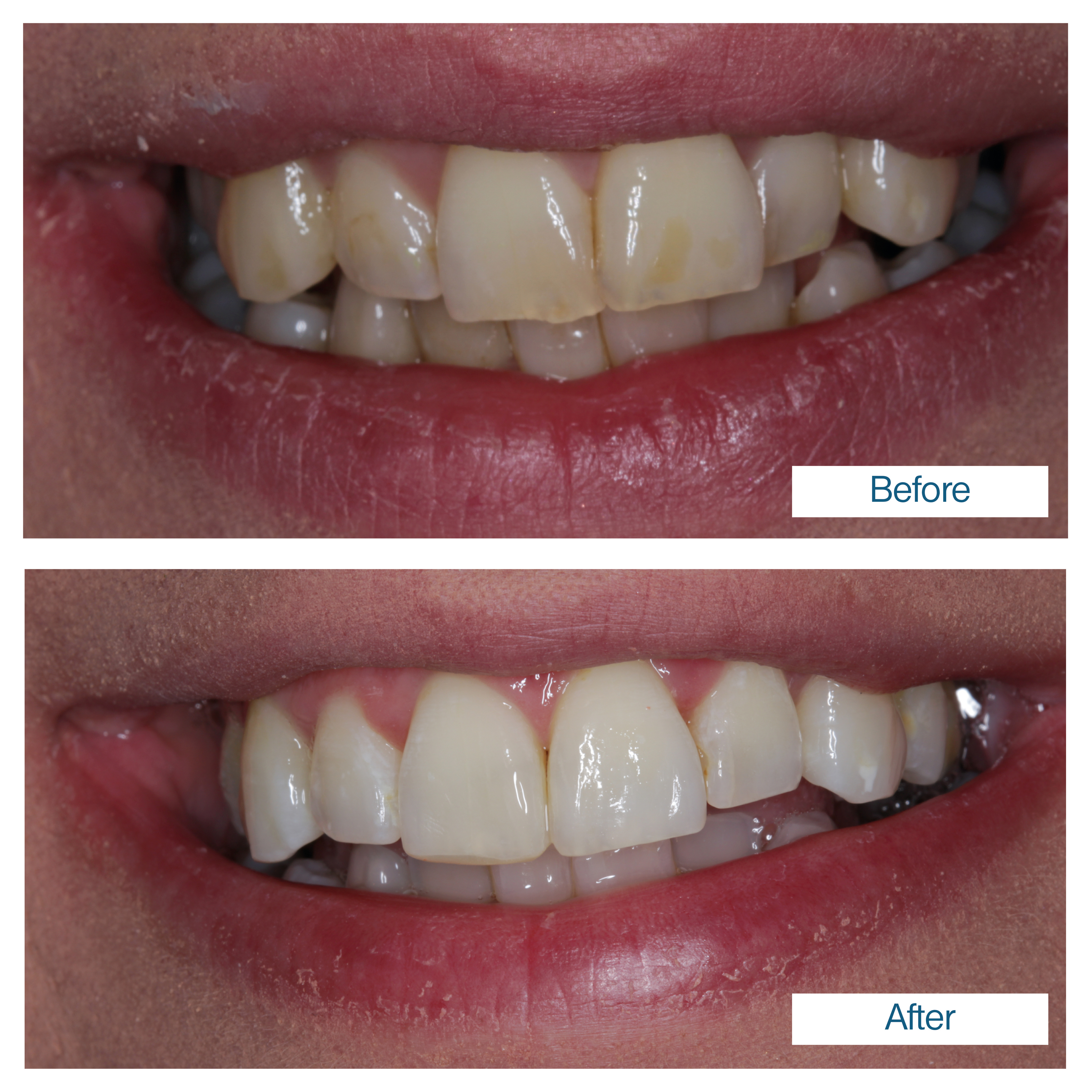Teeth whitening by Edinburgh dentist
